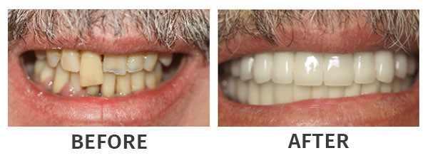 Clear Lake Dental Implants